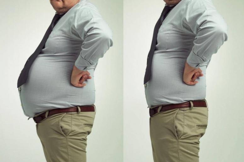 FDA miratoi Lorcaserin HCL për trajtimin e obezitetit